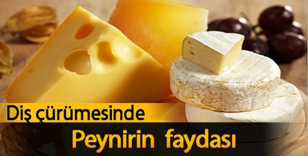 Diş Çürümesinde Peynirin Bilinmeyen Faydası