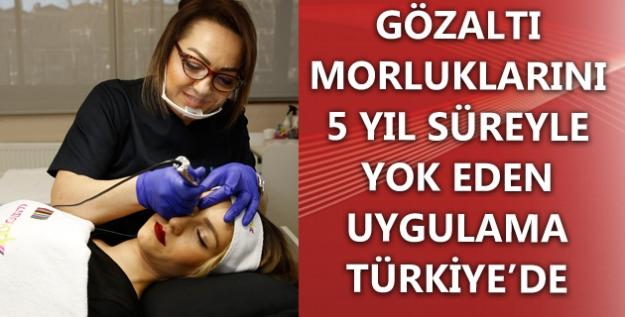 Gözaltı Morluklarını 5 Yıl Süreyle Yok Eden Uygulama Türkiye'de
