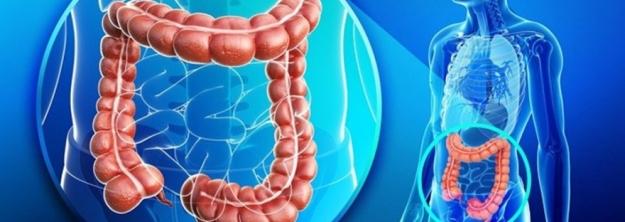 Kolorektal Kanserde Yeni Tedavi Seçenekleri