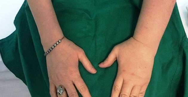 Meme Kanseri Sonrası Hastayı Bekleyen Risk: Lenfödem
