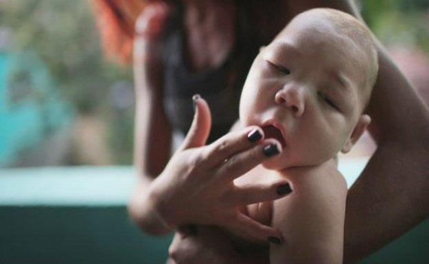Zika Virüsü Kapan Kadınlara Kürtaj İzni