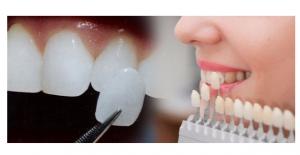 Çarpık Dişler Korkulu Rüyanız Olmasın