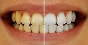 Dişlerde Ki Sararmayı Hafife Almayın!
