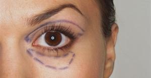 Badem Göz Estetiği Hakkında Merak Edilenler