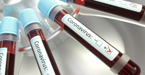 """Dr. Yüksel Büküşoğlu, """"Diyabet İlacı Metformin Koronavirüse Bağlı Ölümleri Önlüyor!"""""""