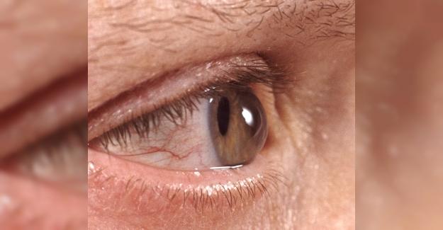 Sonbaharda Göz Hastalıklarına Dikkat!